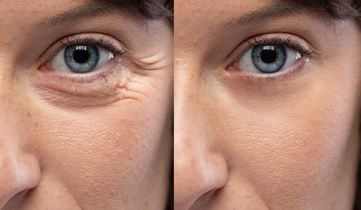 ácido retinoico contra las arrugas