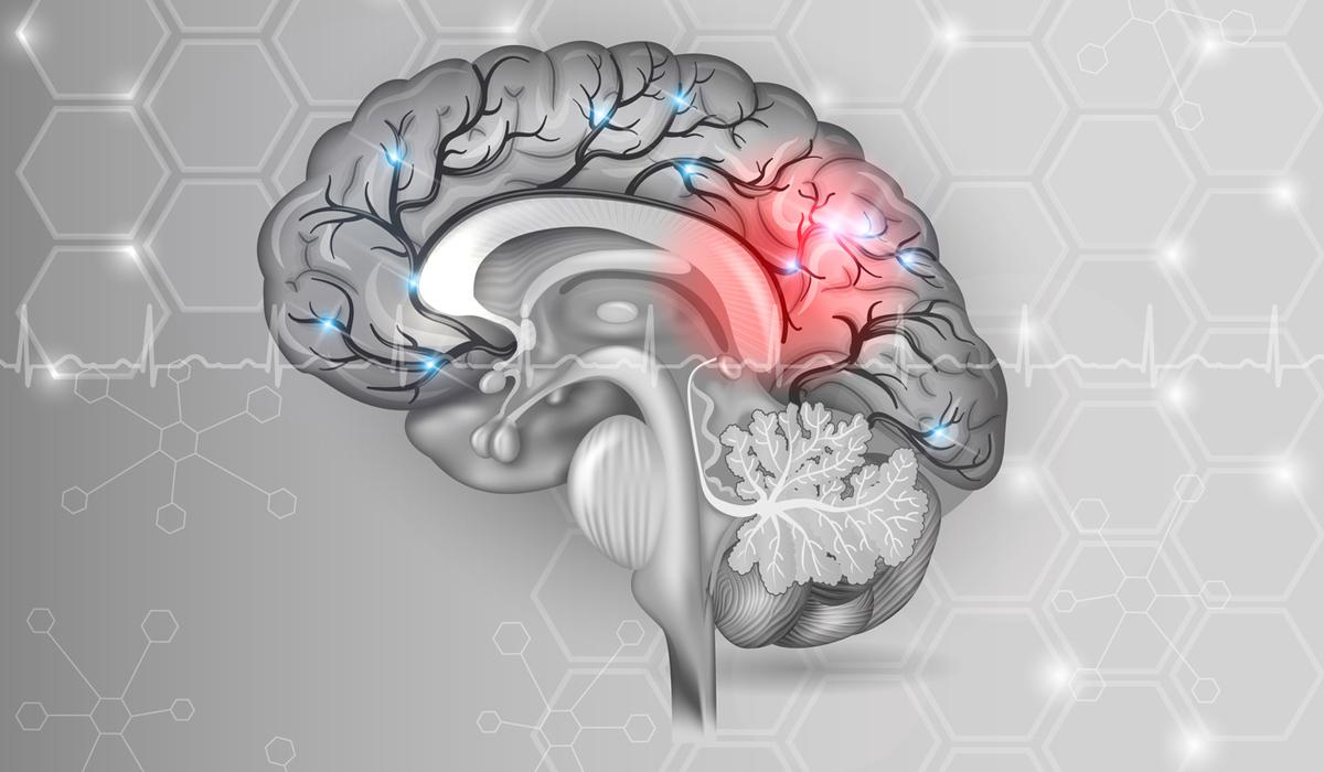 muerte-cerebral