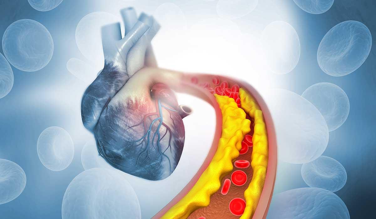 cómo afecta el colesterol y la presión a tu corazón