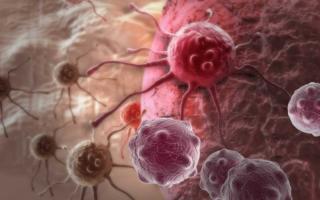 por qué puedes padecer cáncer