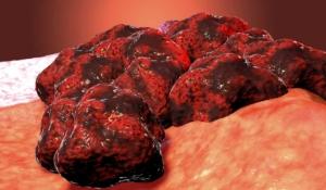 ¿son cancerosos todos los tumores?