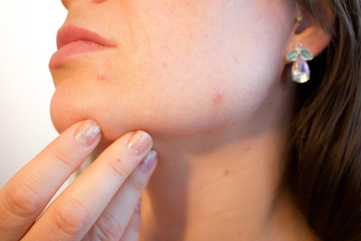 causas de los granitos en la piel