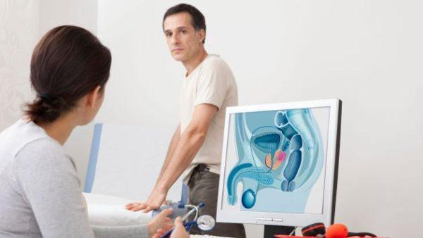 Cancer-de-prostata-sele
