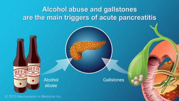 tratamiento-pancreatitis.sele