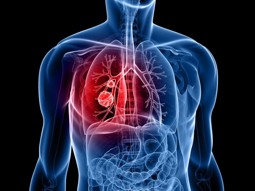 Cáncer de pulmón-sele