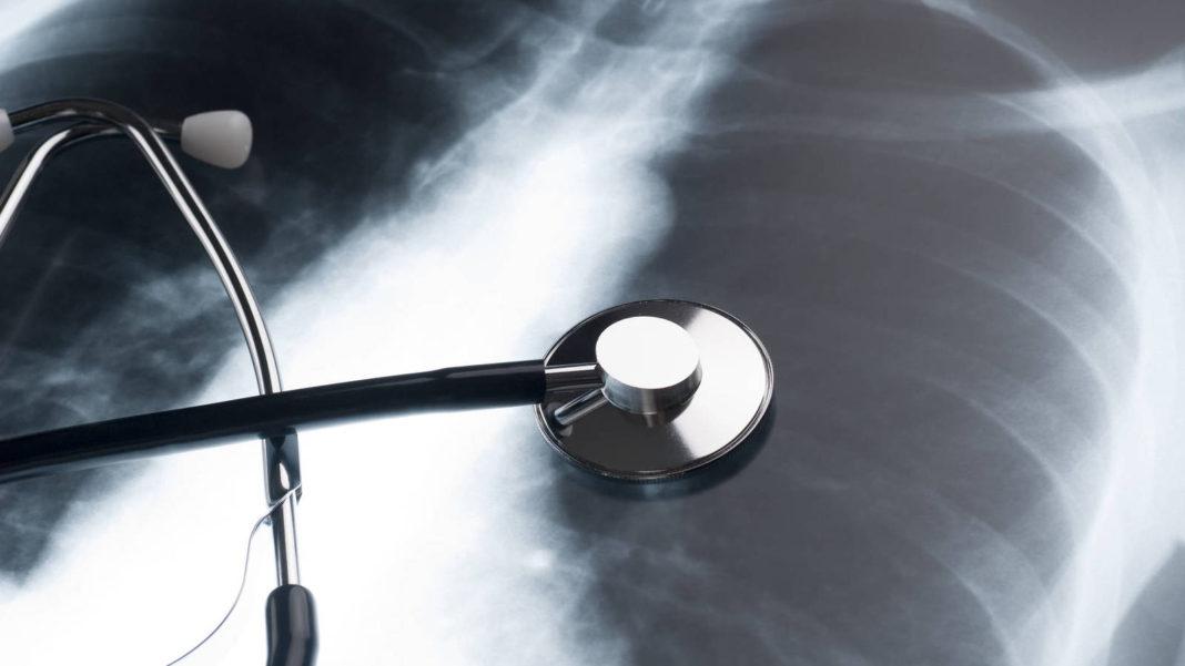 Cáncer de pulmón5