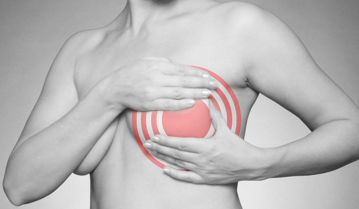 formas de evitar el cáncer de mama