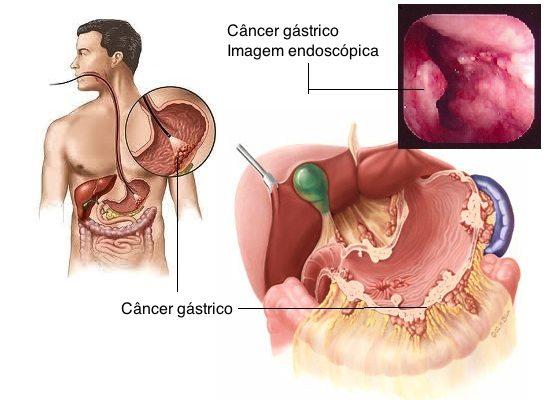 cáncer gástrico