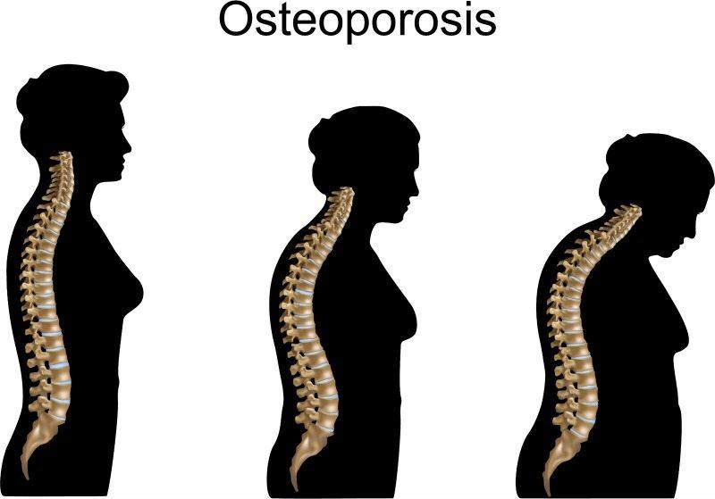 osteoporisis