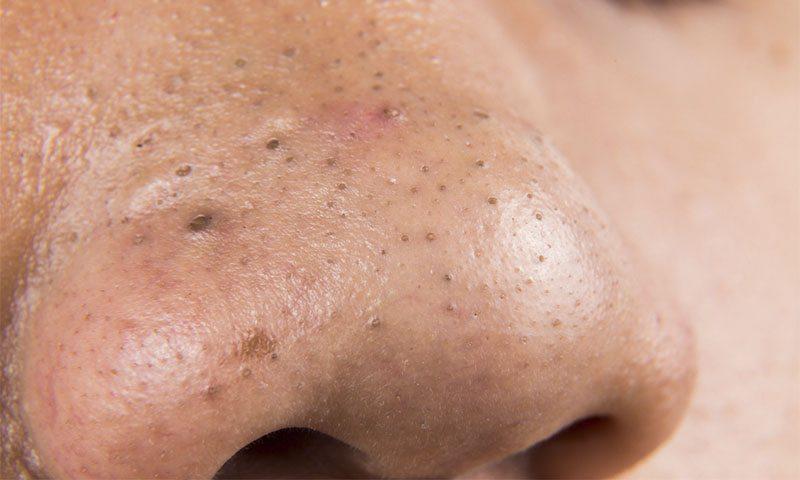 como quitar puntos negro y espinillas de la nariz