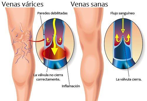 Remedio para eliminar las venas varicosas