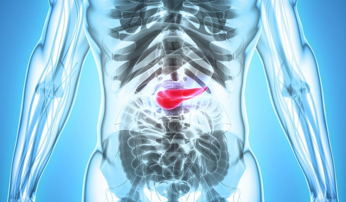 cáncer de páncreas enemigo invencible