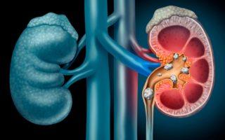 cómo combatir los cálculos renales