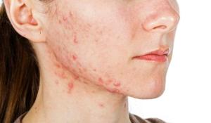 el acné podría esconder enfermedades de nuestro cuerpo