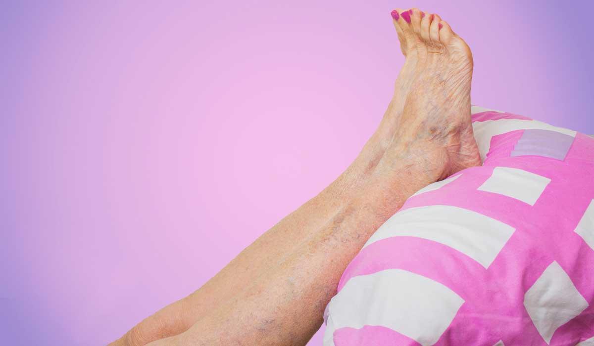 cuidado si tus piernas se hinchan