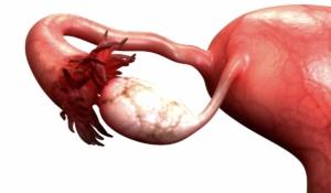 detectar cáncer de ovario
