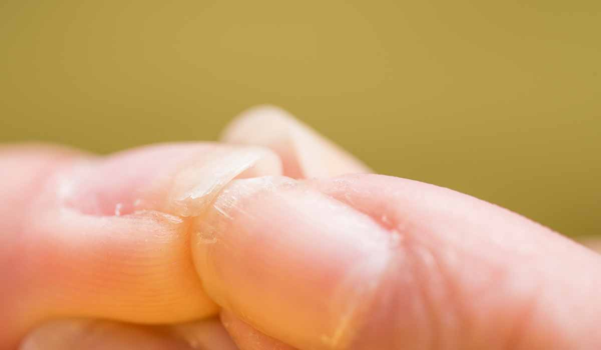 La vida es muy corta para tener uñas feas
