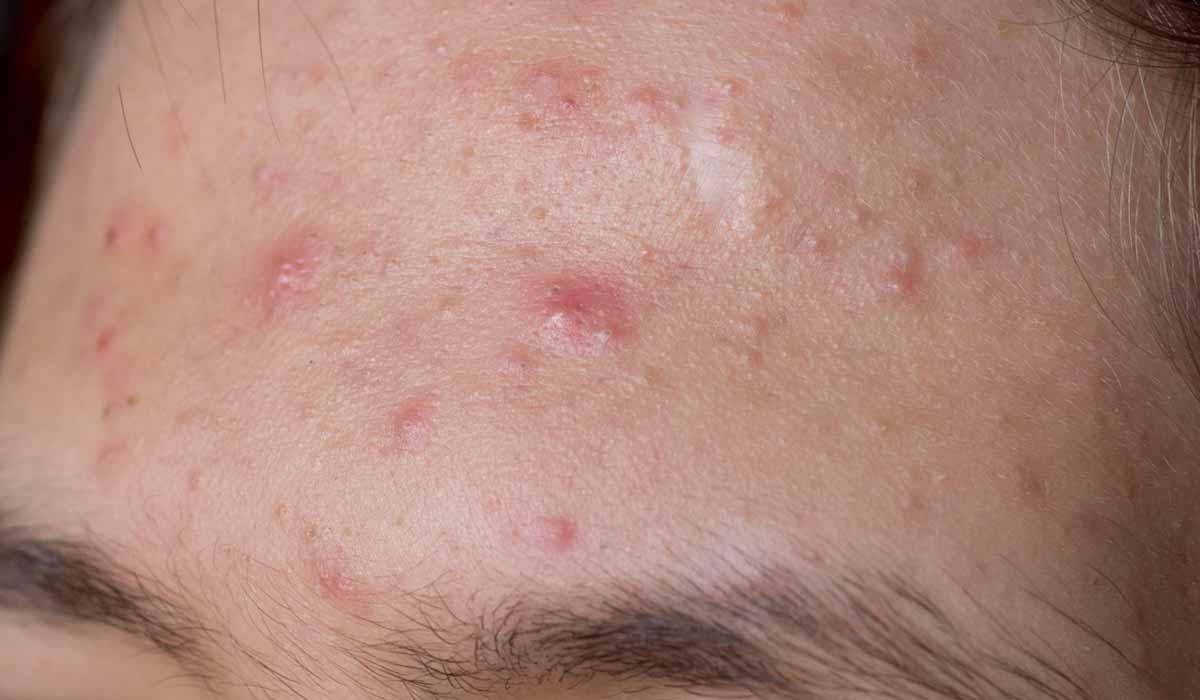 cómo evitar el acné