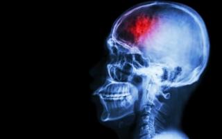 síntomas de un derrame cerebral