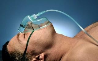 signos de un accidente cerebrovascular