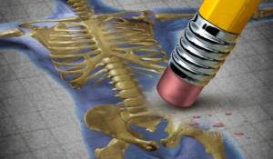 infórmate a cerca de la osteoporosis