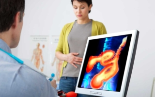 síntomas que quizá no veas del cáncer de colon