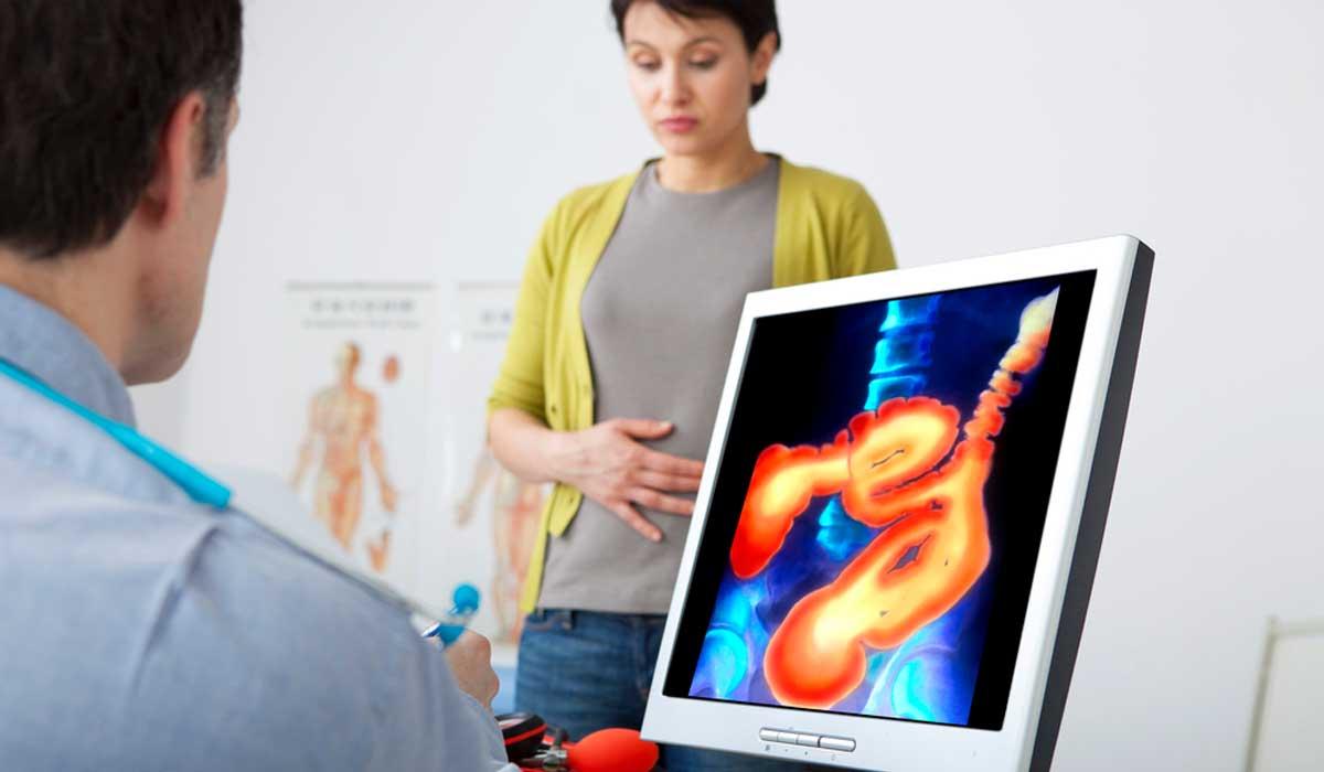Síntomas silenciosos del cáncer de colon que podrías perder de vista