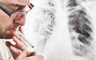 cáncer de pulmón sin haber fumado