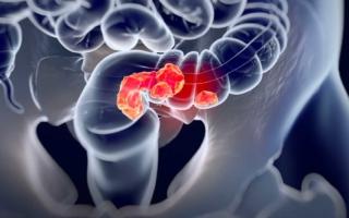 cómo detectar el cáncer colorrectal