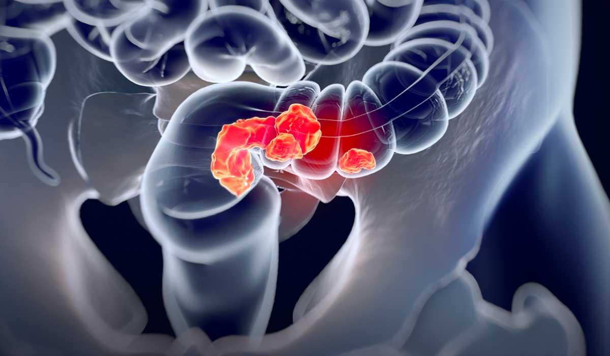 ¿Cómo detectar el cáncer colorrectal?