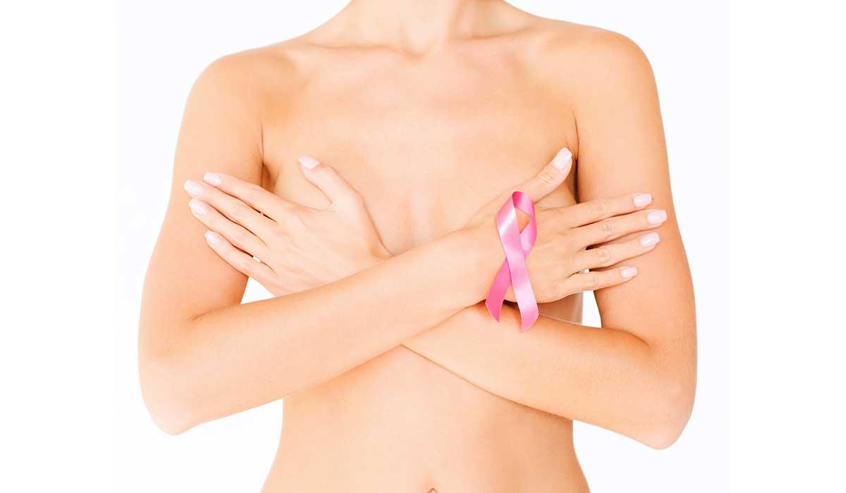 cáncer mama