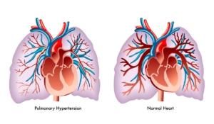 mucho cuidado con la hipertensión arterial pulmonar