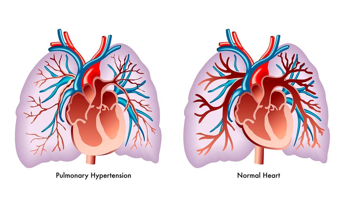 Hipertensión arterial pulmonar, enfermedad poco conocida