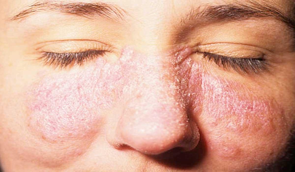 Lupus, la enfermedad que ataca a las mujeres jóvenes