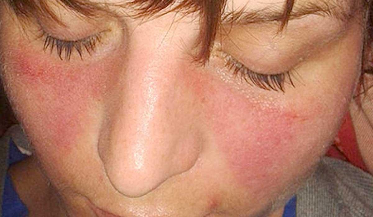 qué puede causar el lupus