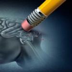 el arte puede ayudar contra el alzheimer