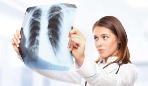 no sabía que tenía cáncer de pulmón