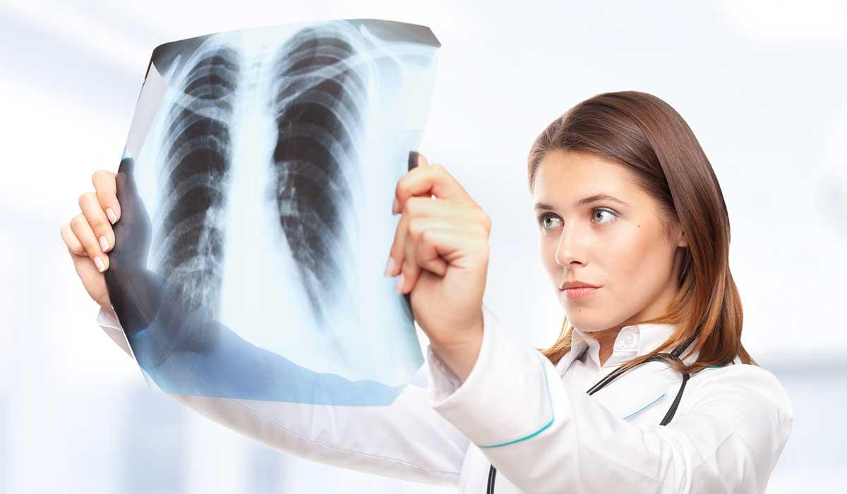 Las extrañas palpitaciones de mi corazón resultaron ser cáncer de pulmón