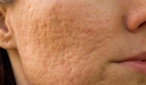 cómo tratar tus cicatrices