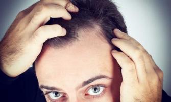 nueva opción para la caída del cabello