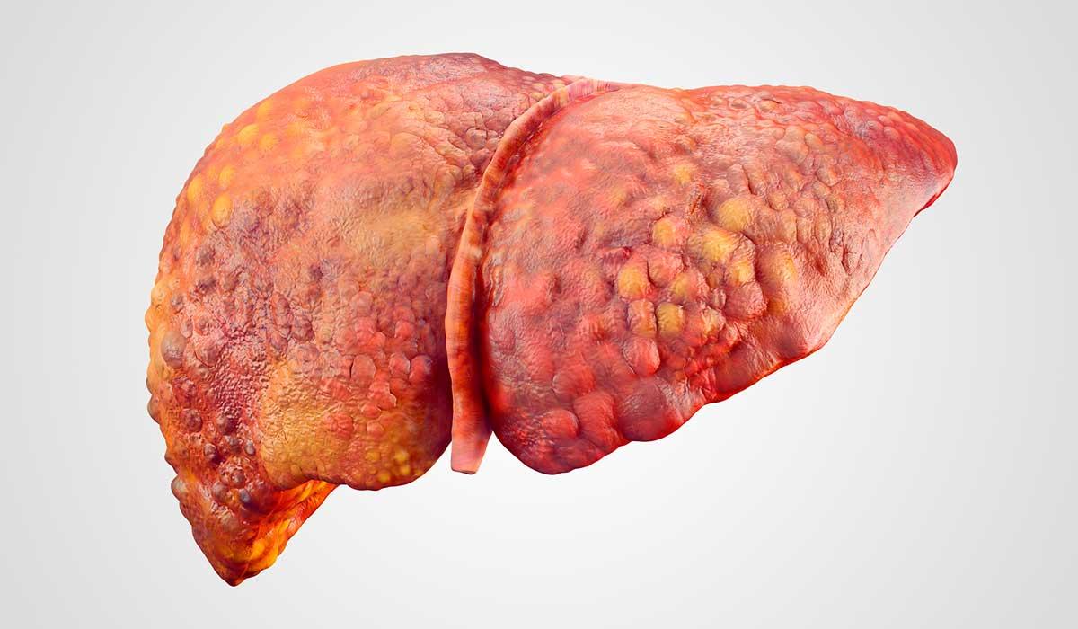 la importancia del diagnóstico de hepatitis c