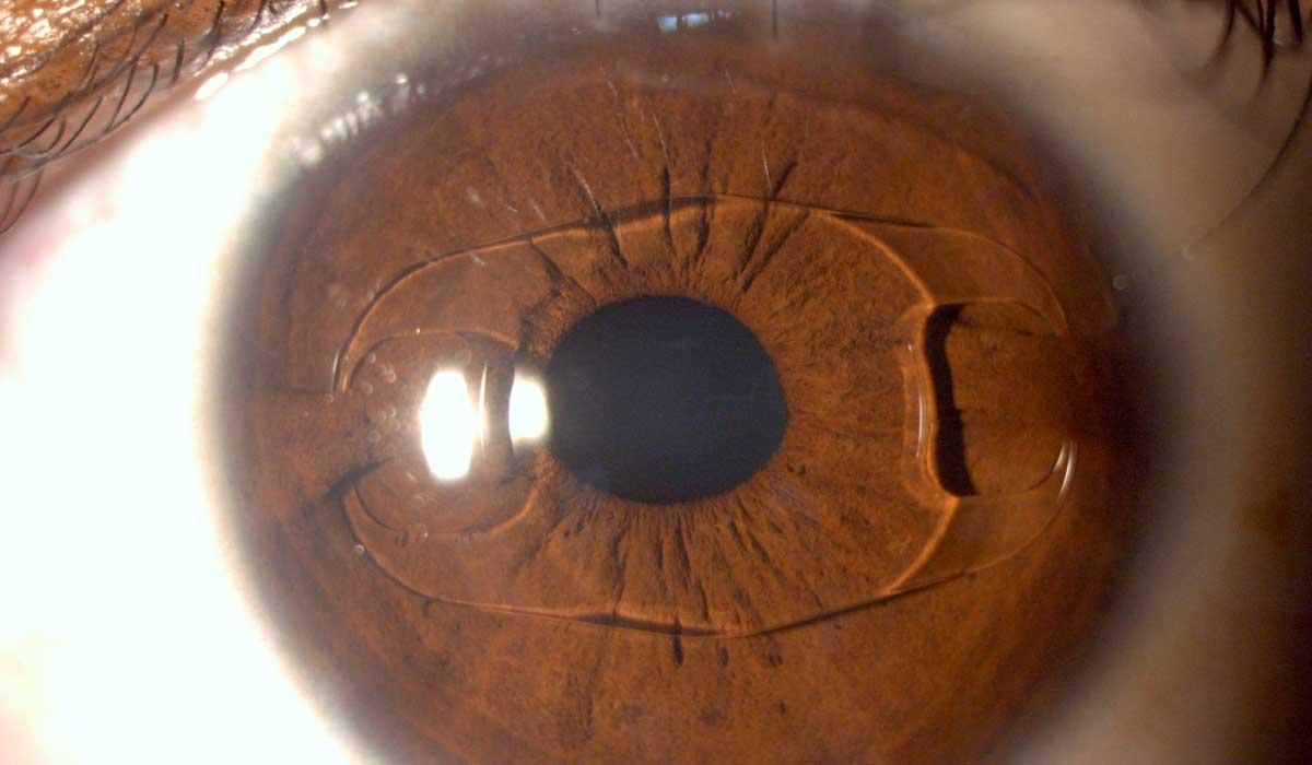 cómo ayuda un lente intraocular