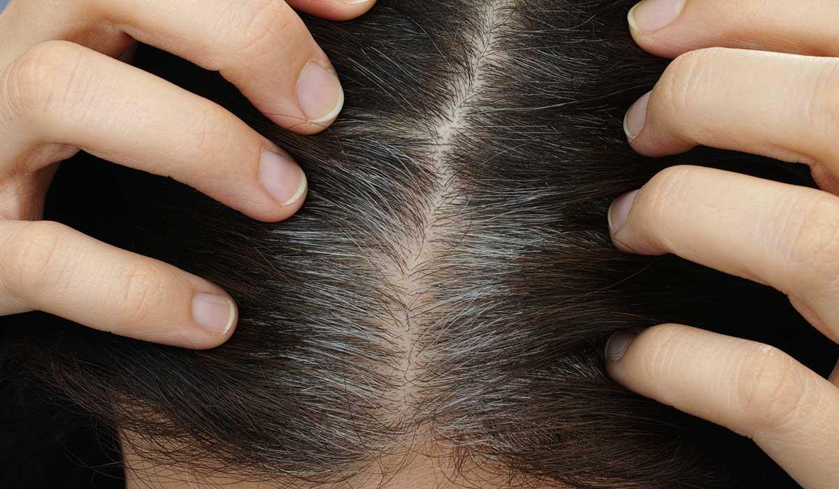 ¿No quieres que tu cabello se llene de canas? Consume estas vitaminas