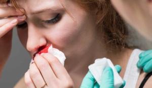 así puedes detener una hemorragia nasal