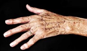 así debes cuidar la piel de los adultos mayores