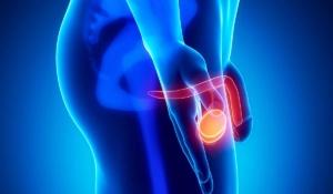 afecciones en el testículo podrían terminar en cáncer