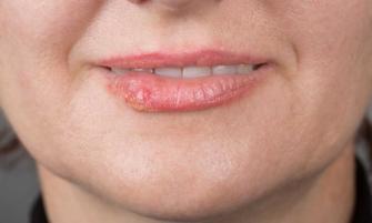 mejora tu herpes labial
