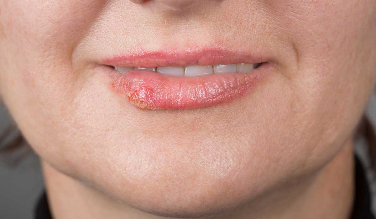 Remedios caseros contra el molesto fuego labial