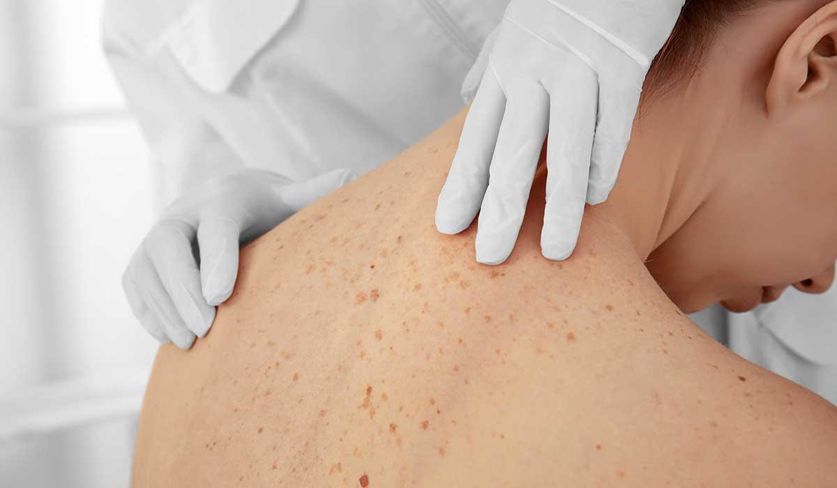 revisión cáncer de piel