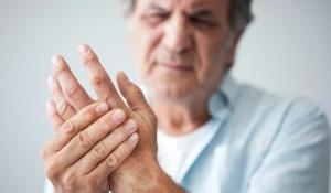 artritis y cómo lidiar con ella